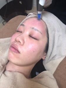 ダーマペン施術を受けている女性