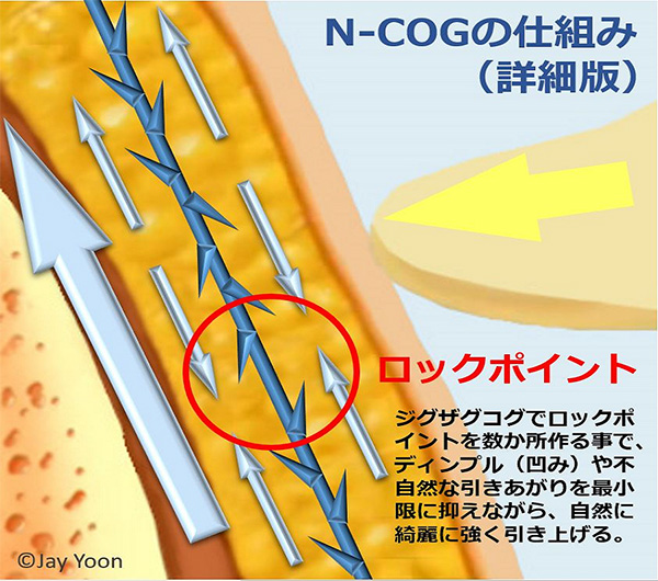 切らないリフトアップ、N-COG(ニュートンコグ、エヌコグ)リフトの仕組み
