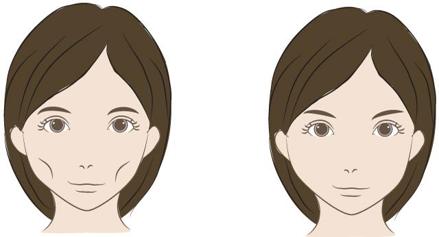 頬をふっくら(ヒアルロン酸・脂肪注入)